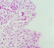 biphasic mesothelioma tissue